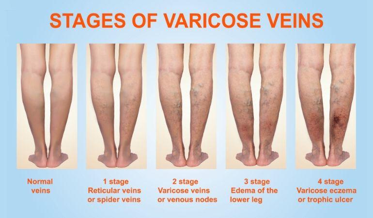 kako nastaju proširene vene