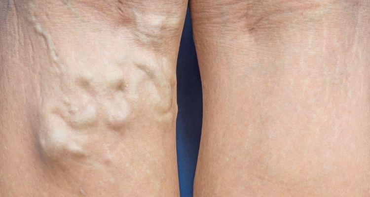 proširene vene iza koljena