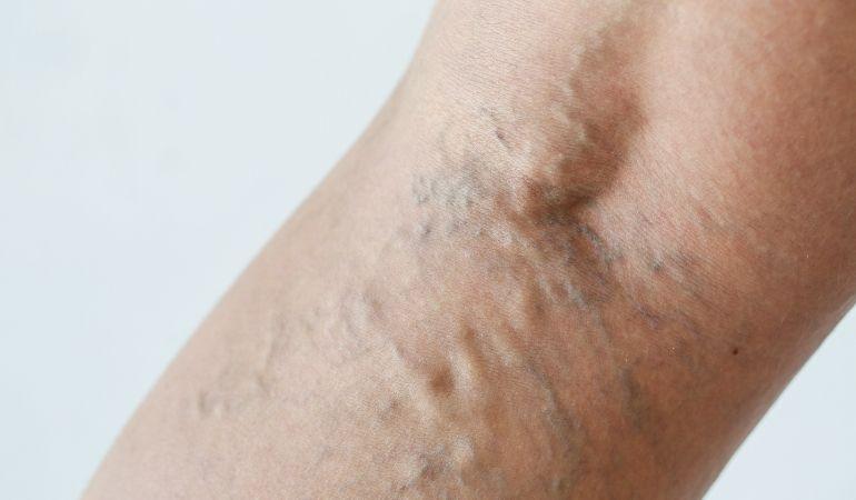 vene iza koljena