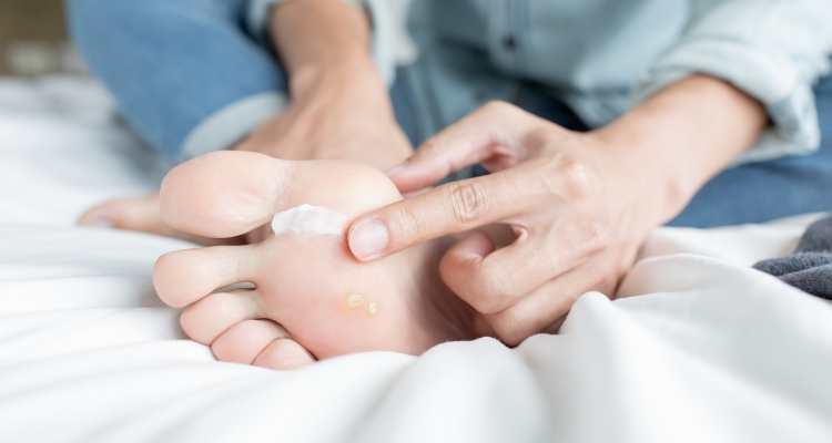 gljivice na koži prirodno lječenje